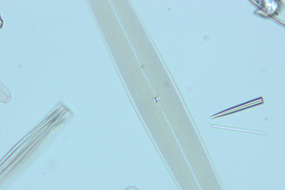 図4 珪藻(対物40×)