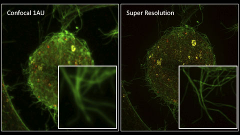 Live Cell Super Resolution Imaging: The Big Picture of Small Things