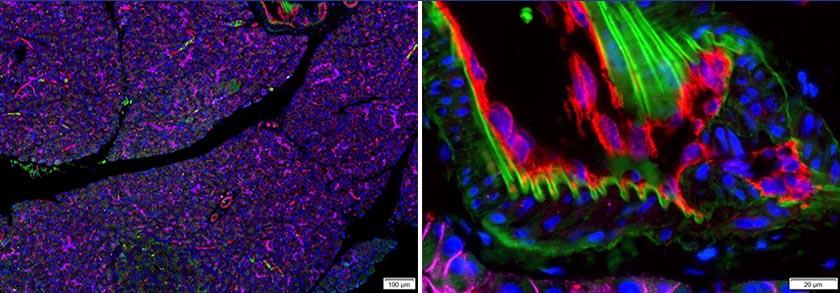 Multiplexed fluorescence microscopy