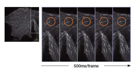 最速0.005s/フレームの超解像イメージングで、細胞内小器官の微細な変化もライブ観察