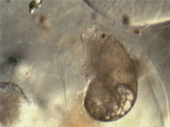 Aquatic Snail (Gastropoda)