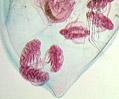 Water Flea (Daphnia)