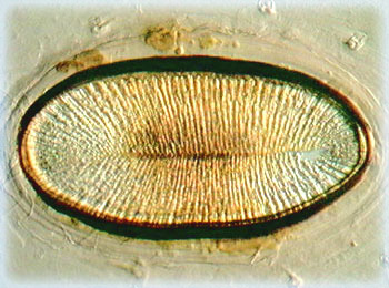 Insect Spiracles