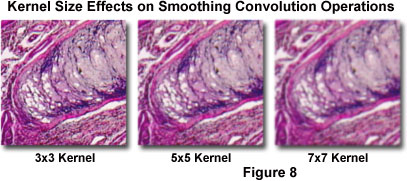 Digital Imaging in Optical Microscopy - Basic Concepts in