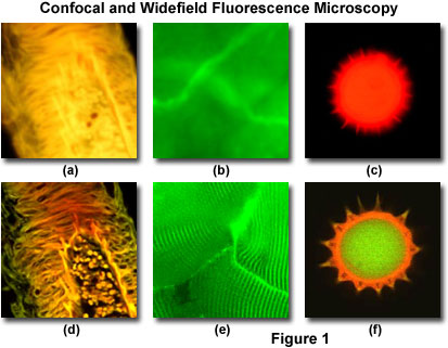 Confocal Microscopy Introduction Olympus Life Science