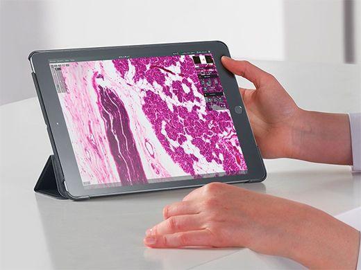 Digital pathology evaluation performed using a mobile device and digital slide produced with the portable Ocus slide scanner