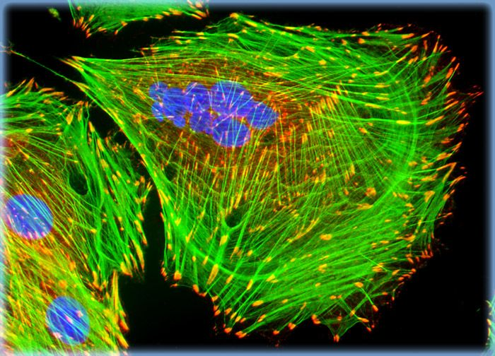 Embryonic Rat Thoracic Aorta Medial Layer Myoblast Cells (A-10 Line)